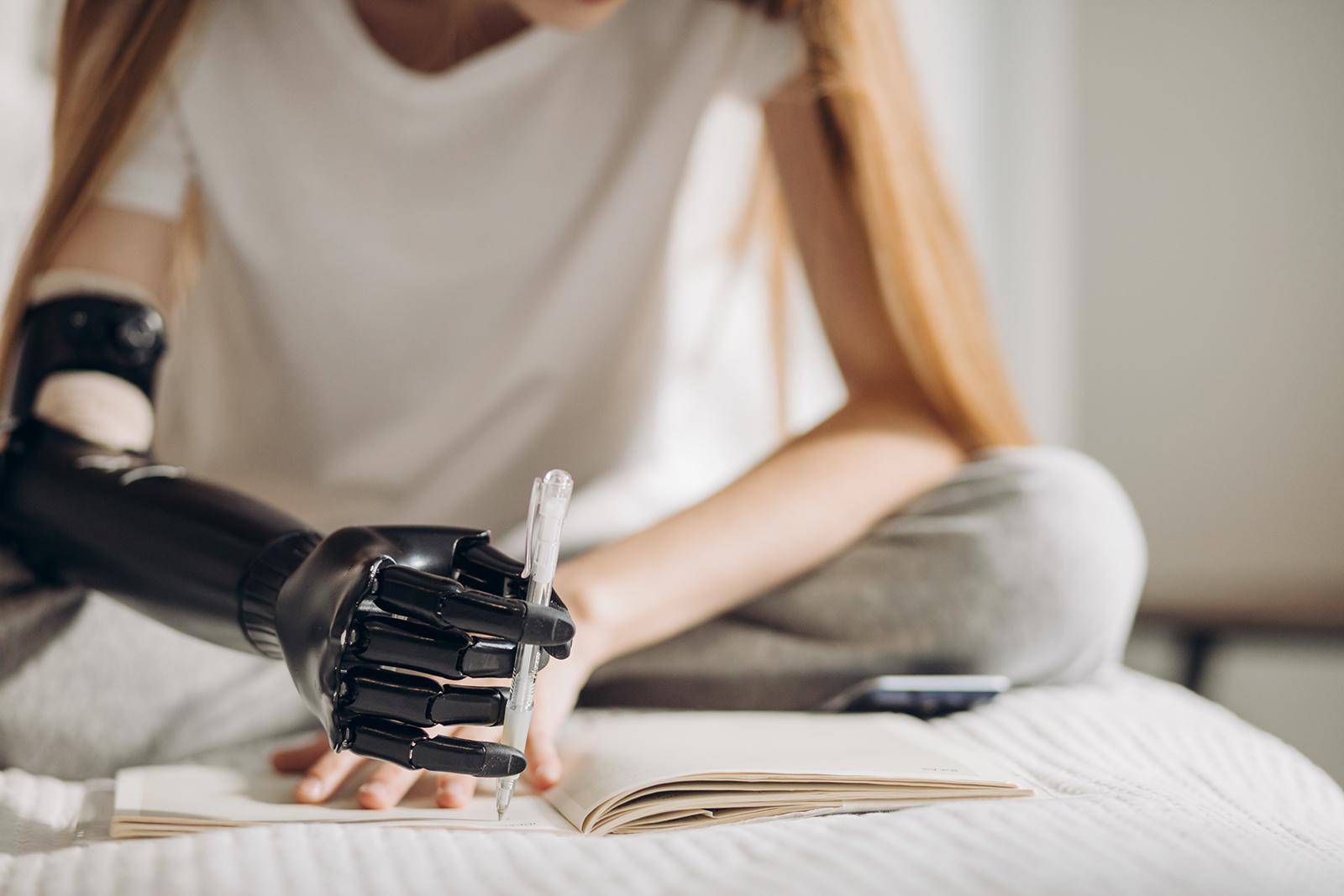 Proteza ręki dla poszkodowanej w wypadku